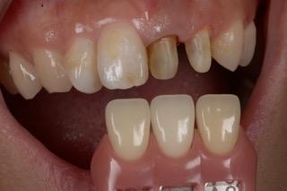 支台歯の撮影例
