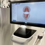 【セレック プライムスキャン特集】前歯6本の症例編〜想定模型の確認・印象データの採取からセットまで〜